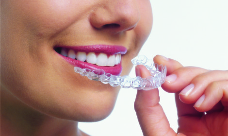smiling woman invisalign